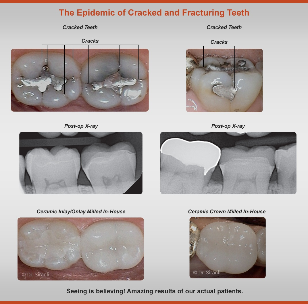 Cracked-Teeth - Before and After