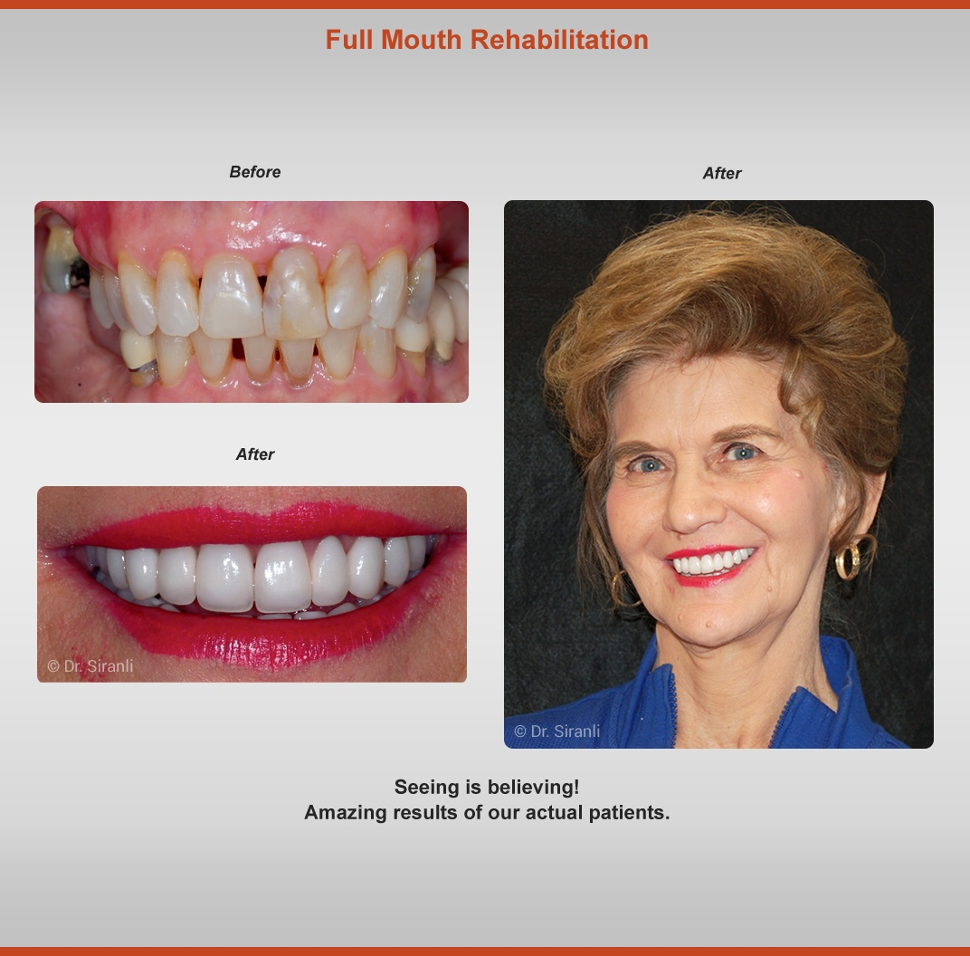Full Mouth Rehabilitation - Before and After