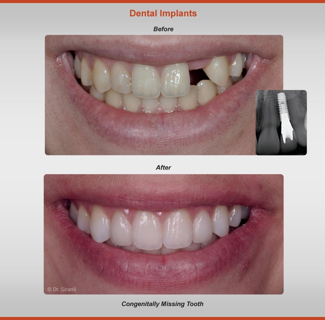 2018-implants-case-1