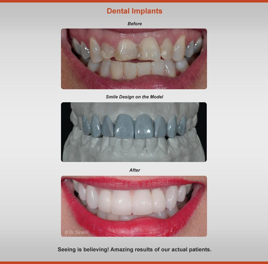 2018-implants-case-3