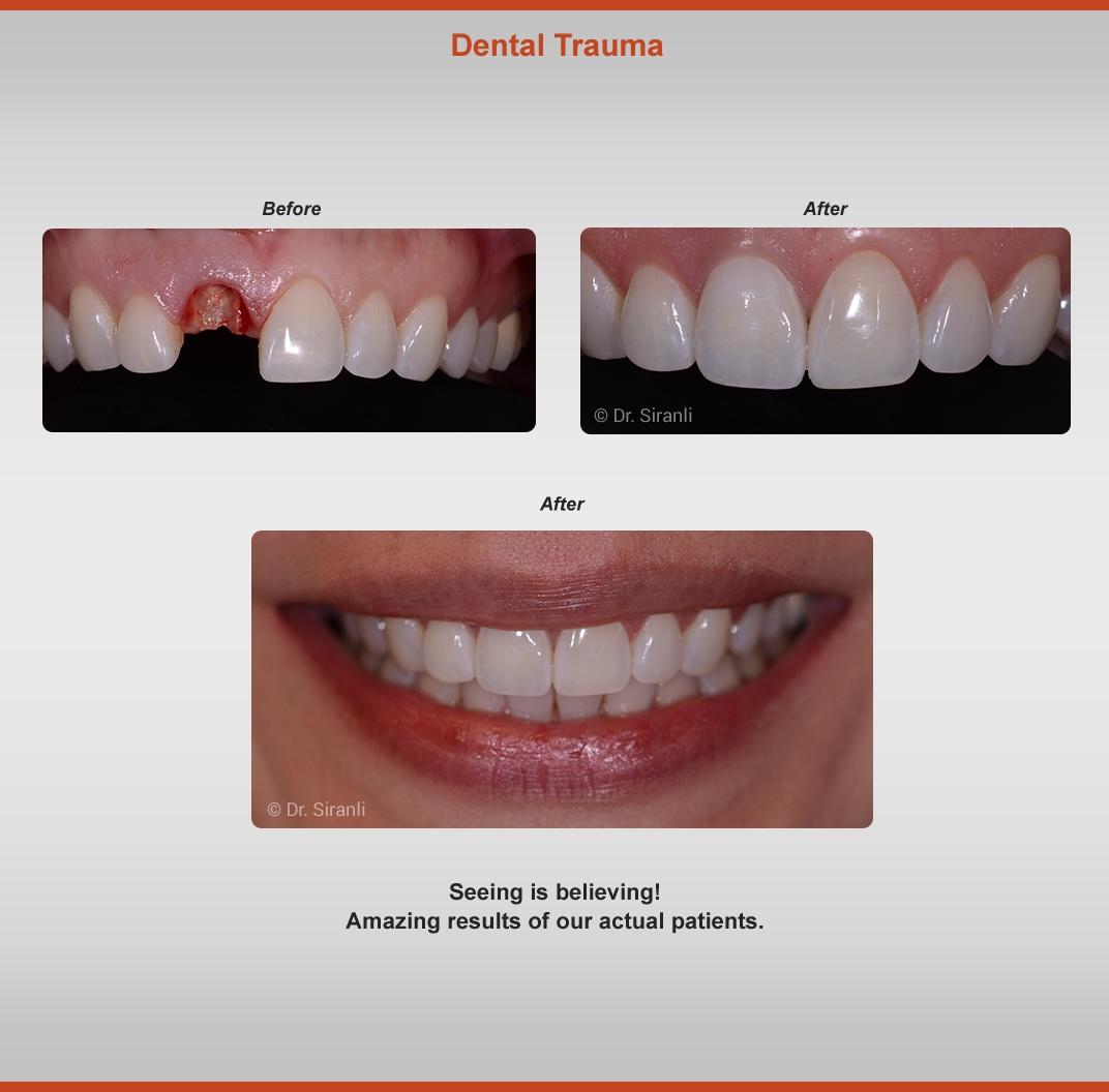 2020-dental-trauma