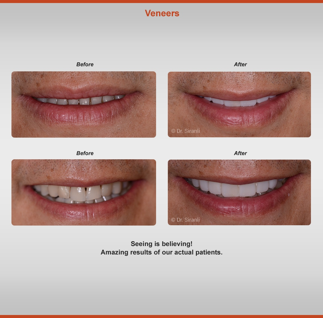 Veneers Before & After