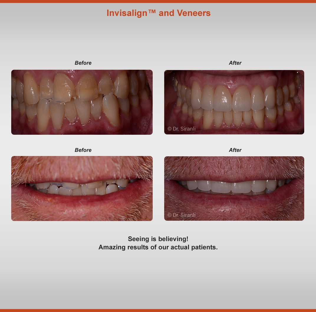 Invisalign Vaneers- Before and After