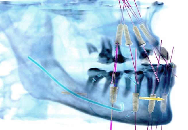 3D-Dental-X-rays