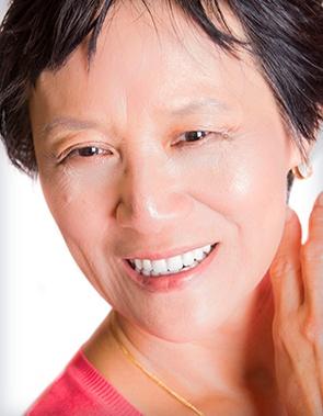 implants-patient-after