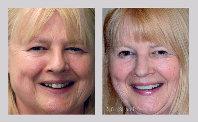 Smile makeover gallery