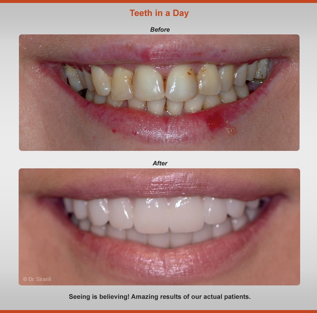 teeth-in-a-day-before-after