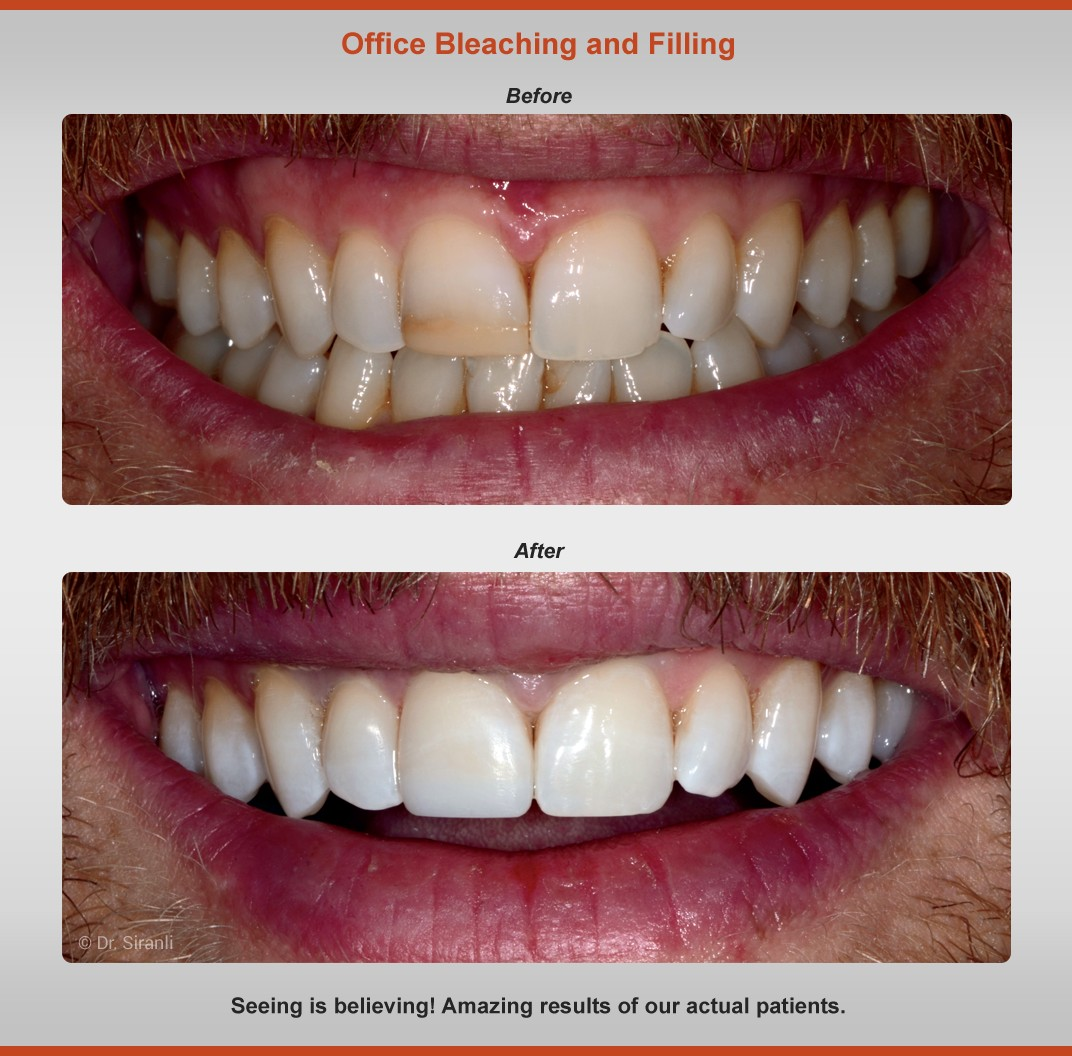 bleaching-filling-before-after